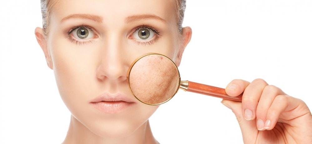 Советы дерматологов, которые могут помочь затянуть большие поры на коже