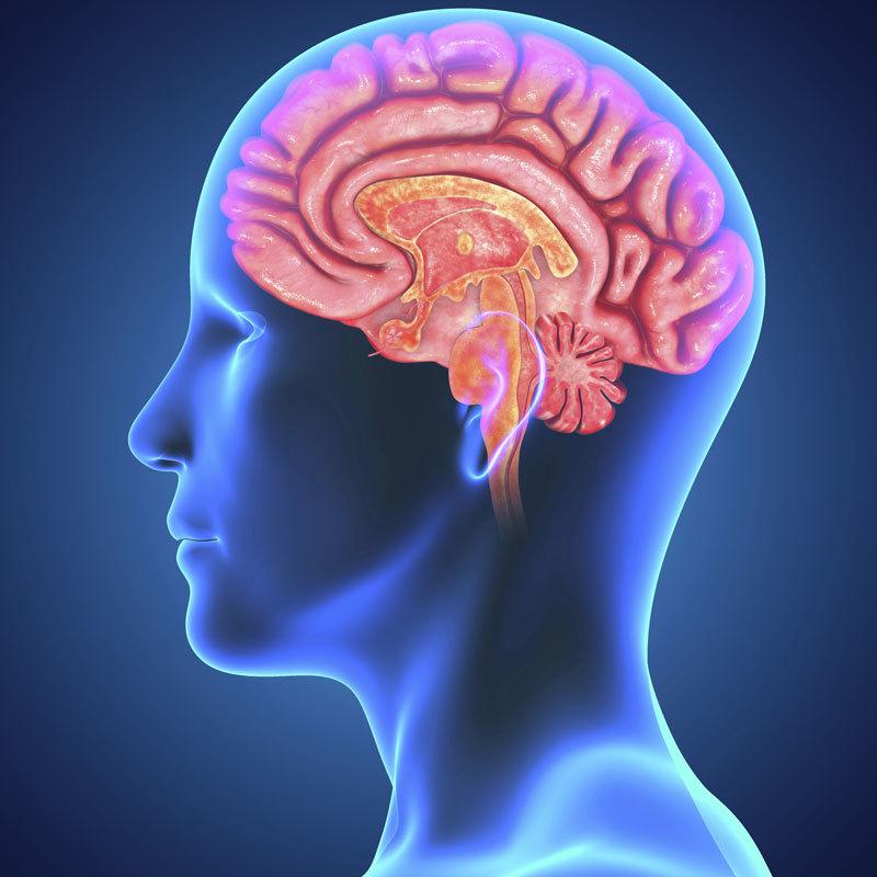 Наименее реалистичным является следующее изображение неврологического повреждения